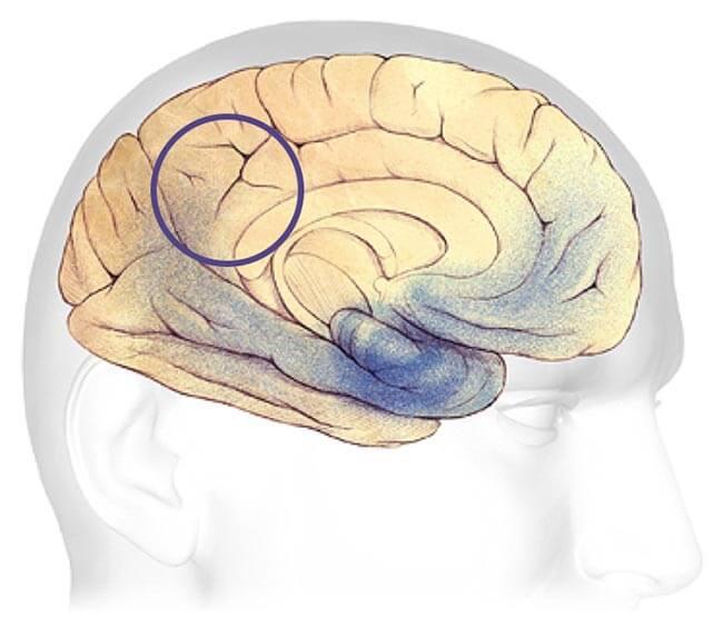 efeitos-do-alzheimer-no-cerebro